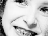 A Dizzying Array of Choices in Braces for Your Teen