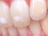 Blotchy Teeth? Fix Those Fluoride Stains Today!